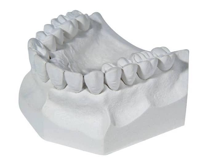 Plaster (Tipe II)